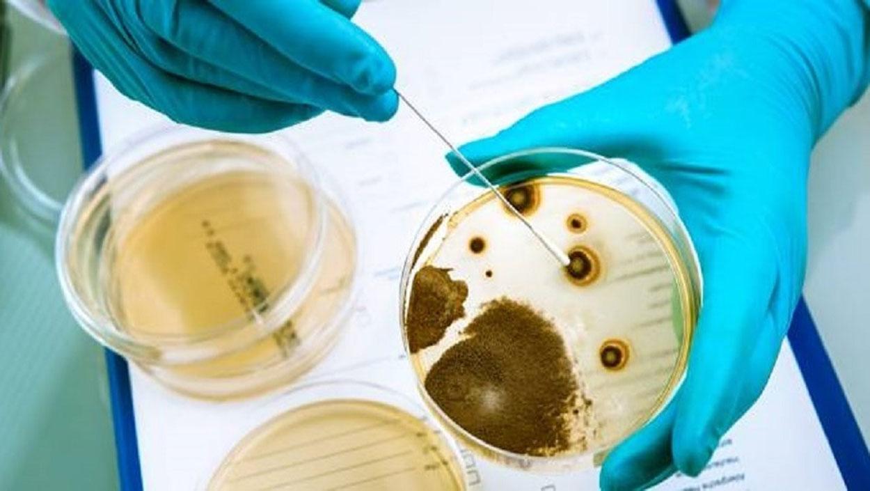 Investigándose una muerte de meningitis por listeria en Granada