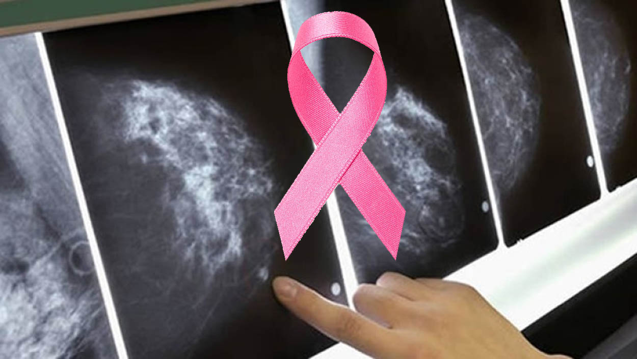 El cáncer de mama podría detectarse hasta con cinco años de antelación